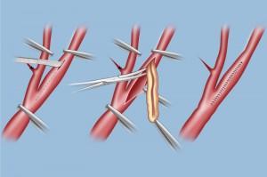 carotid-endarterectomy-lg