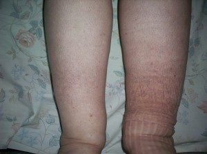 lymphedema 1sml
