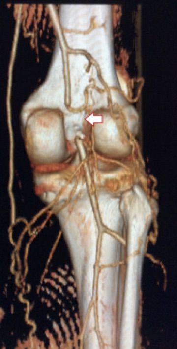Αξονική αγγειογραφία που απεικονίζει απόφραξη της ιγνυακής αρτηρίας σε γυναίκα 40 ετών με σύνδρομο παγίδευσης ιγνυακής αρτηρίας και εκδήλωση πόνου στην κνήμη κατά την βάδιση. Το βέλος καταδεικνύει το σημείο της απόφραξης.