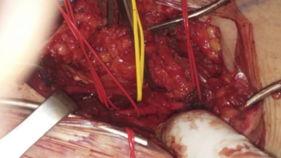 Χειρουργικό παρασκεύασμα της ιγνυακής αρτηρίας. Φαίνεται καθαρά περιβρογχισμένος με το κίτρινο χρώμα ο τένοντας που συμπιέζει την αρτηρία που είναι περιβρογχισμένη με το κόκκινο χρώμα vessel loop.